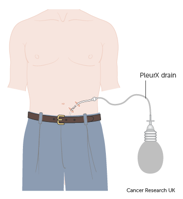 -Diagram-showing-a-PleurX-drain-with-drainage-bottle-attached.png