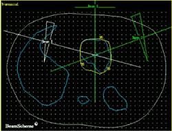 2D radiotherapy plan