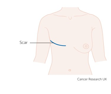 Diagram showing the scar line after a mastectomy for breast cancer.