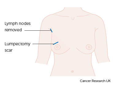 Breast - wide local incision diagram