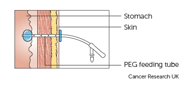 Detailed diagram of a percutaneous endoscopic gastrostomy (PEG) feeding tube