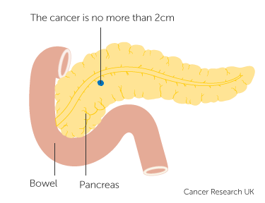 Diagram showing T1 cancer of the pancreas