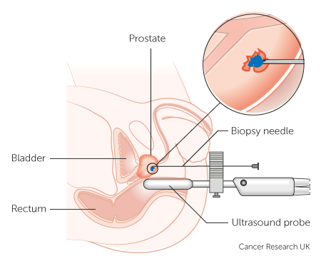 Diagram showing a prostate biopsy