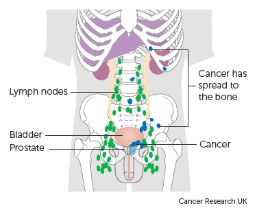 Diagram showing prostate cancer that has spread to the bone