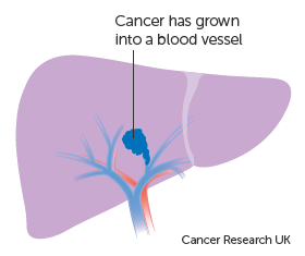 Diagram 1 of 2 showing stage 2 liver cancer