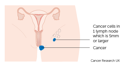 Diagram 1 of 2 showing stage 3A vulval cancer
