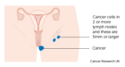 Diagram 1 of 2 showing stage 3B vulval cancer