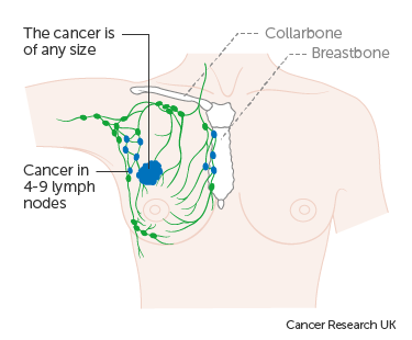 Diagram 1 of 3 showing stage 3A breast cancer