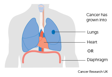 Diagram-1-of-3-showing-stage-3A-oesophageal-cancer.png