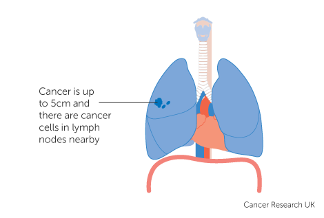 Diagram 1 of 4 showing stage 2B lung cancer