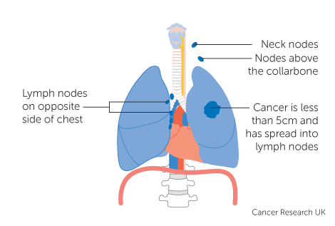 Diagram 1 of 4 showing stage 3B lung cancer
