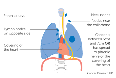 Diagram 1 of 4 showing stage 3C lung cancer