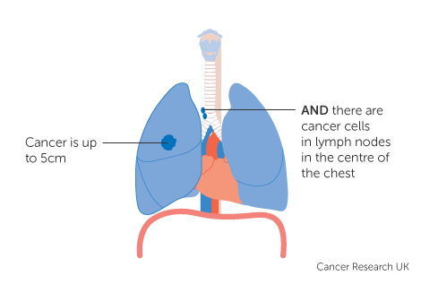 Diagram 1 of 5 showing stage 3A lung cancer