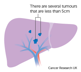 Diagram 2 of 2 showing stage 2 liver cancer
