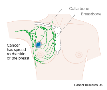 Diagram 2 of 2 showing stage 3B breast cancer