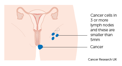 Diagram 2 of 2 showing stage 3B vulval cancer