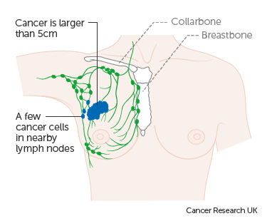 Diagram 2 of 3 showing stage 3A breast cancer