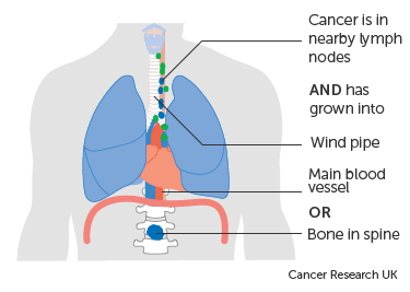 Diagram-2-of-3-showing-stage-3C-oesophageal-cancer.png