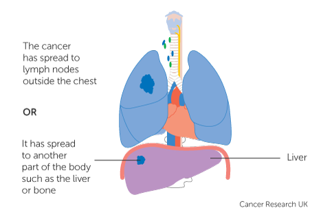 Diagram 2 of 3 showing stage 4 lung cancer