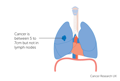 Diagram 2 of 4 showing stage 2B lung cancer