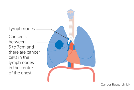 Diagram 2 of 4 showing stage 3B lung cancer