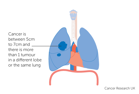 Diagram 2 of 4 showing stage 3C lung cancer