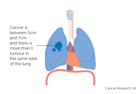 Diagram 2 of 5 showing stage 3A lung cancer