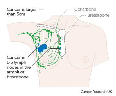 Diagram 3 of 3 showing stage 3A breast cancer