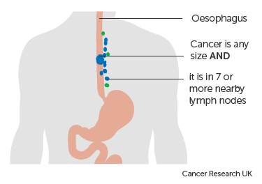 Diagram-3-of-3-showing-stage-3C-oesophageal-cancer.png