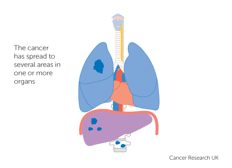 Diagram 3 of 3 showing stage 4 lung cancer