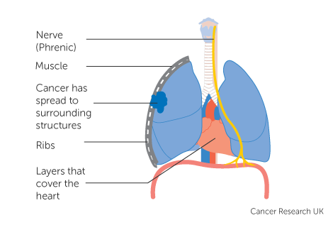 Diagram 3 of 4 showing stage 2B lung cancer