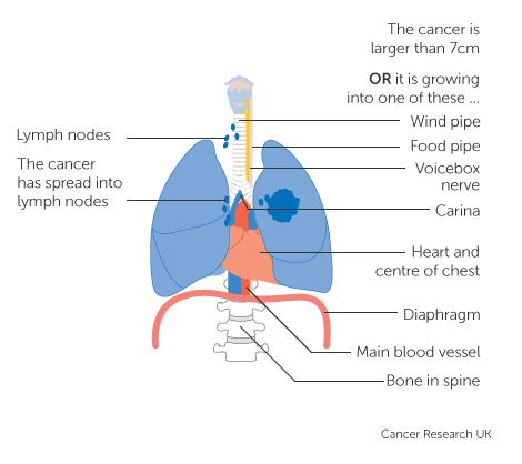 Diagram 3 of 4 showing stage 3C lung cancer