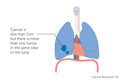 Diagram 4 of 4 showing stage 2B lung cancer