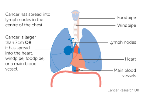 Diagram 3 of 4 showing stage 3B lung cancer