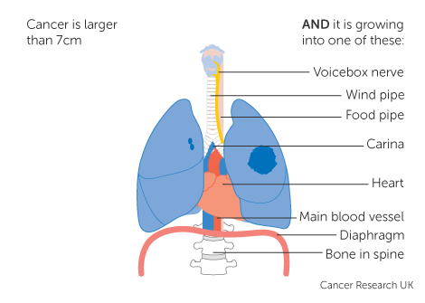 Diagram 4 of 5 showing stage 3A lung cancer