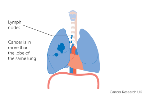 Diagram 5 of 5 showing stage 3A lung cancer