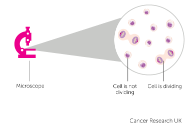 Diagram of Ki 67 index for neuroendocrine tumours