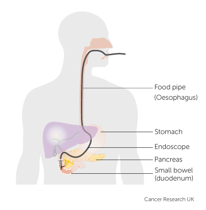Diagram of an endoscopic retrograde cholangio pancreatography
