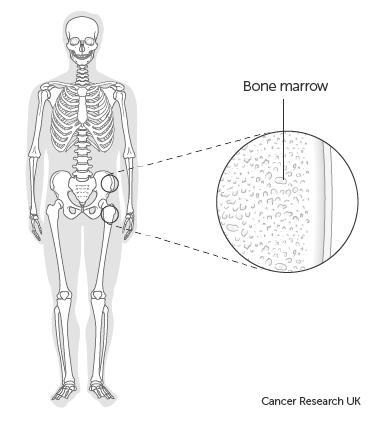 what does a bone marrow biopsy show