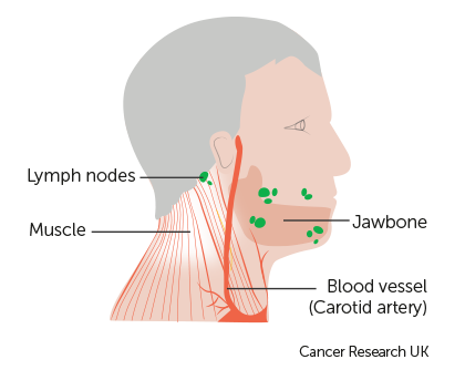 TNM stages | Salivary gland cancer | Cancer Research UK