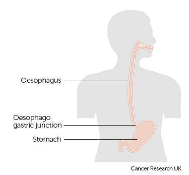 Diagram of the gastro oesophageal junction