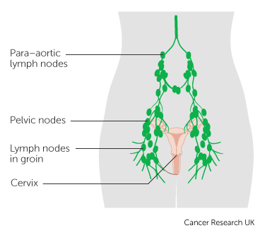 Diagram of the lymph nodes in the pelvis with para-aortic lymph nodes