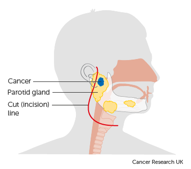 Diagram of the parotid gland before surgery to remove a tumour