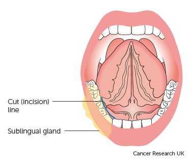 Diagram of the sublingual salivary gland before surgery to remove a tumour