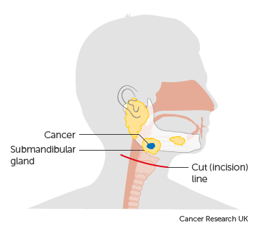 Diagram of the submandibular gland before surgery to remove a tumour
