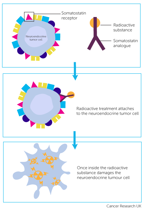 Diagram showing Peptide Receptor Radionuclide Therapy PRRT