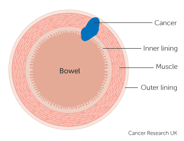 Stage 2 Bowel Cancer Cancer Research Uk