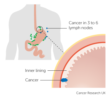 Diagram showing Stage 2A stomach cancer (pathological-staging) 1 of 3