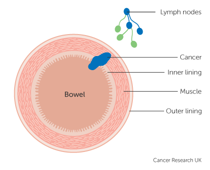 Stage 3 Bowel Cancer Cancer Research Uk