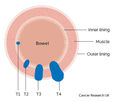 Diagram showing T stages of bowel cancer